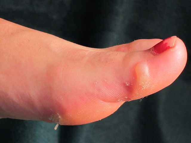 Dr Pribut On Blisters Prevention And Treatment